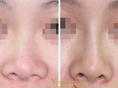 蒜头鼻整形,您也可以拥有自己的美鼻